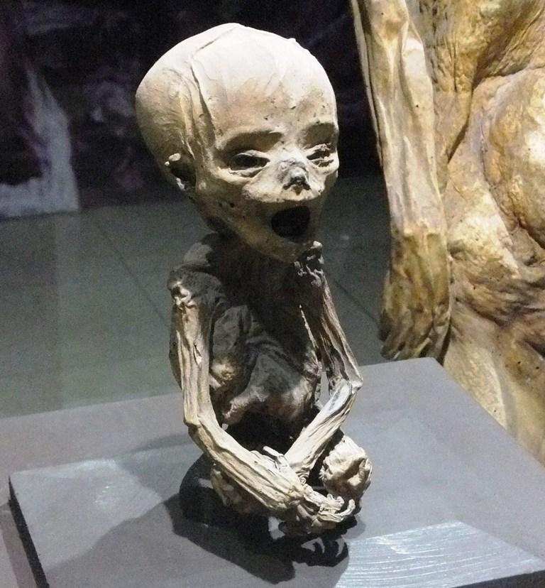 Mummified fetus